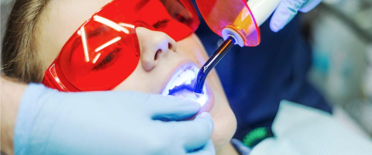 Отбеливание зубов зум слайдер3