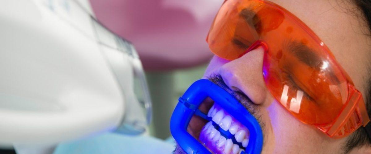 Отбеливание зубов мужчинам слайдер5